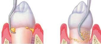 Scaling | Modern Dentistry | Canberra Dentist