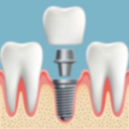 Nova-Dental-dental-implants-2.jpg