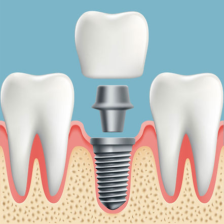 Nova-Dental-dental-implants-2.jpg