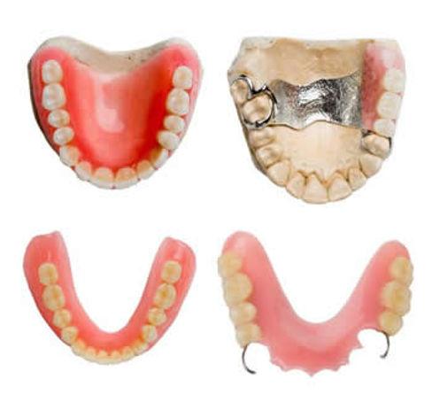 Dentures Canberra | Modern Dentistry | Canberra Dentist