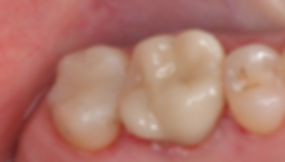 Amalgam-Removal-After.jpg