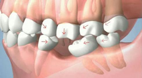 Shifting Teeth | Modern Dentistry | Dentist Canberra