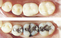 white-fillings-before-and-after.jpg