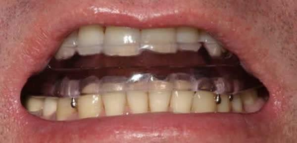 Sleep Apnoea Mouthguards | Modern Dentistry | Dentist Canberra