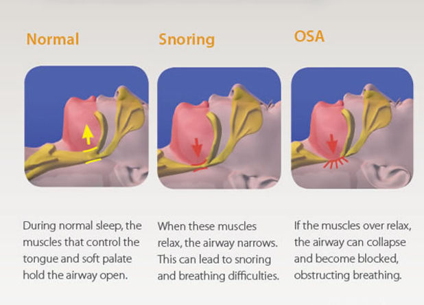 Obstructive Sleep Apnoea | Modern Dentistry | Canberra Dentist