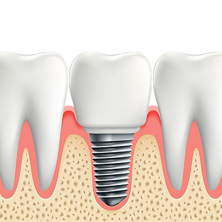 DentalImplant_500x500.png