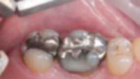 Amalgam-Removal-Before.jpg