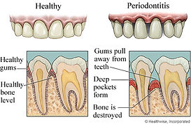 Periodontitis | Modern Dentistry | Dentist Canberra