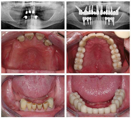 Dental Implant Treatment | Modern Dentistry | Canberra Dentist