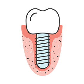 dental-implant-image.png