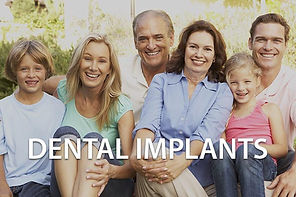 FAQ_Channon Lawrence_DENTAL IMPLANTS.jpg