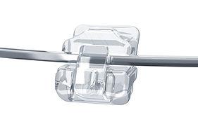 Clear Braces Brisbane | Exact Orthodontics Indooroopilly | Orthodontist Brisbane