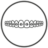 Braces Indooroopilly | Exact Orthodontics | Brisbane Orthodontist