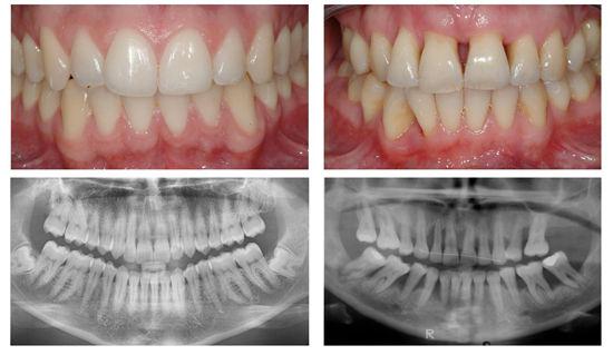 Gum Disease Comparison | Modern Dentistry | Dentist Canberra CBD