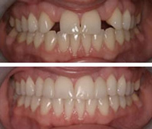 Dental Bridge | Modern Dentistry | Canberra Dentist