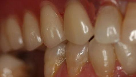 dentures-after.jpg