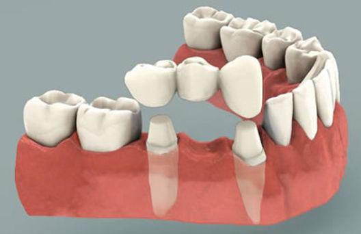 Dental Bridge Placement | Modern Dentistry | Dentist Canberra