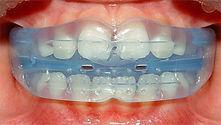 myofunctional-tongue-and-lip-retraining-