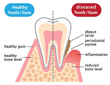 periodontal-disease-vector.jpg