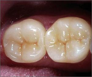 Dental Crown Technology | Modern Dentistry | Dentist Canberra