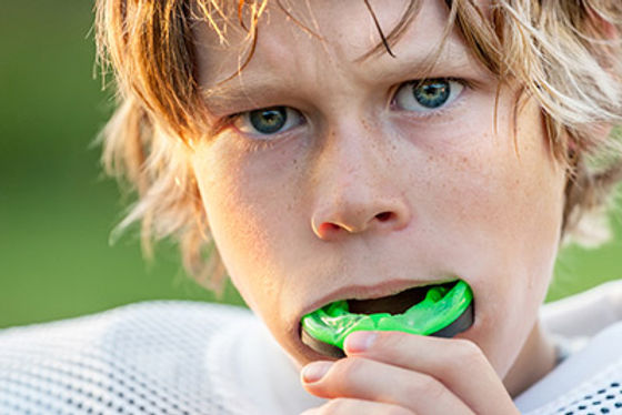 Sports Mouthguards | Modern Dentistry | Canberra Dentist