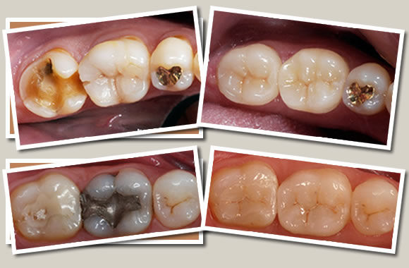 Dental Crowns and Fillings | Modern Dentisry | Canberra Dentist