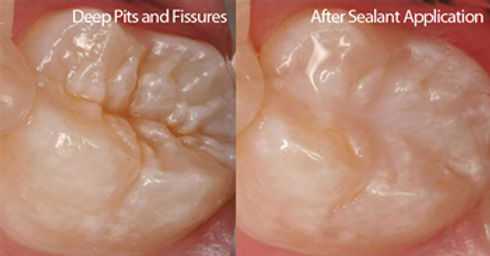 Sealants & Fissures | Modern Dentistry | Canberra Dentist