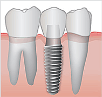implant-diagram.png