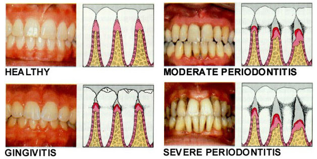 Stages of Gum Disease | Modern Dentistry | Canberra Dentist