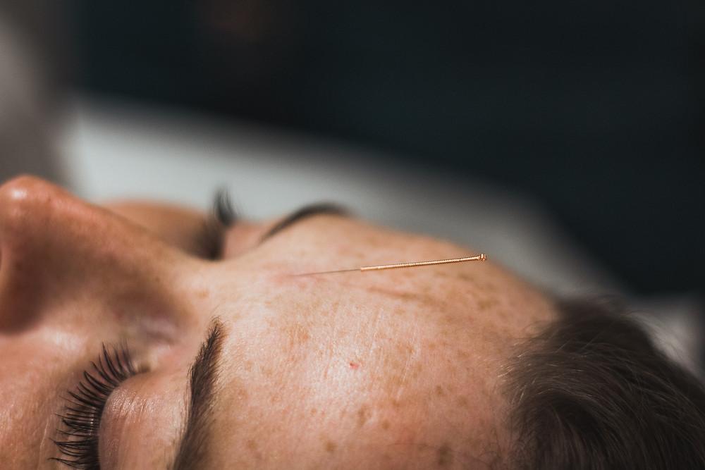 natacha acupuncture vannes