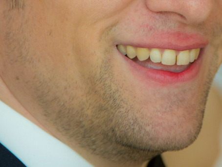 I Got Lipstick on The Groom on Our Wedding Day!  How to Fix This