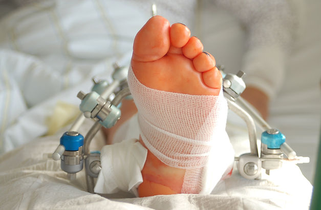 Advanced Foot, Ankle & Wound Specialists PA, Podiatrist Fort Lauderdale FL