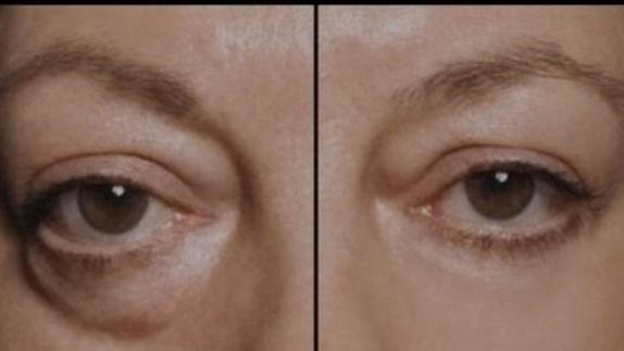 Blepharonat Eye Bag Reduction