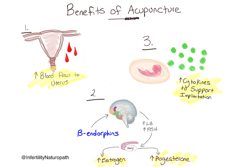 naturopathic medicine fertility acupuncture ottawa ON Canada
