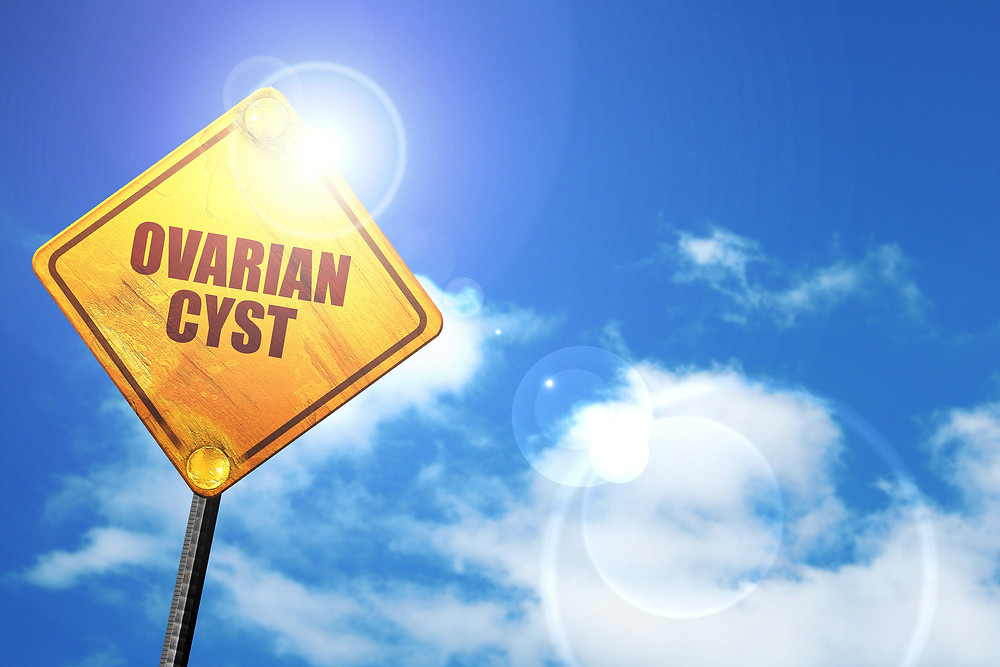 ovarian cyst polycystic ovarian syndrome signs pcos fertility health ottawa naturopath medicine healing cysts
