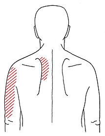 斜角筋関連痛②