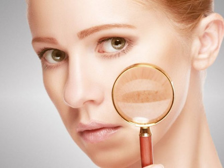 Melasma. Why do you have it and how to treat it.