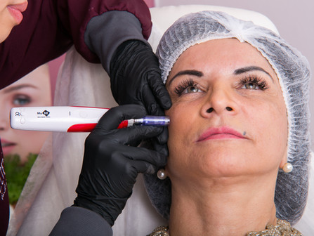 Entenda como microagulhamento pode alavancar seus resultados num tratamento Facial ou Capilar