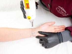 Como funciona a remoção de Tatuagem e micropigmentação?