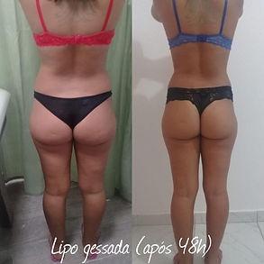 Antes e Depois Lipogessada