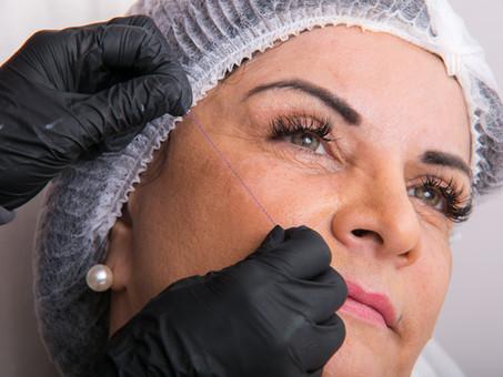 Fios de Sustentação | Um procedimento básico para um consultório ou clinica de estética