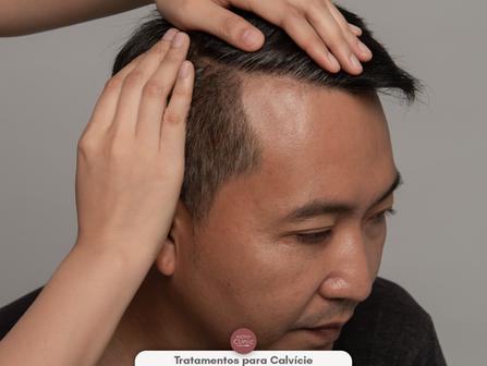 Queda de cabelo, entenda sobre e conheça todos os tratamentos e medicamentos que podem ser aplicados