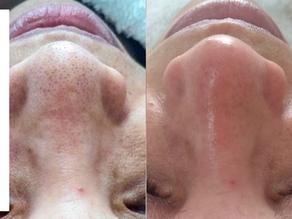 Limpeza de pele profunda, como funciona?