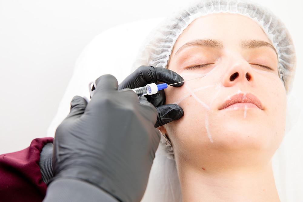harmonização facial com preenchimento