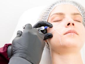 Harmonização Facial com Preenchimento de Ácido Hialurônico