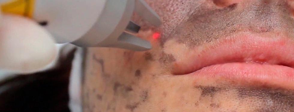 Peeling de Carbono