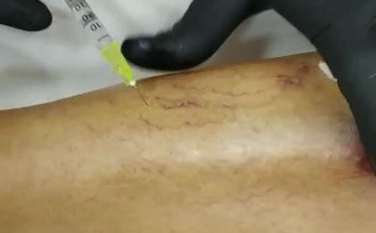 Curso de Escleroterapia Injetável