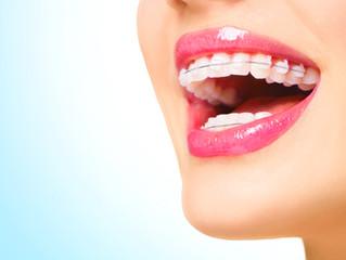 Los brackets de zafiro, tratamiento dental de ortodoncia estética.