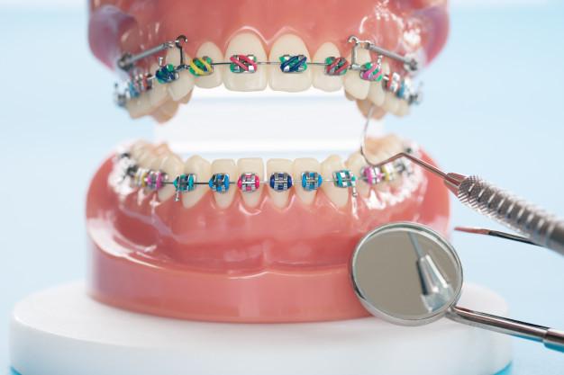 dentista concepcion ortodoncia