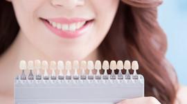 Blanqueamiento en clínica dental